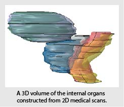 3D volume of internal organs