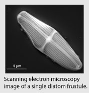 Scanning electron microscopy  image of a single diatom frustule.